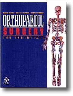 Orthopedic Surgery: The Essentials