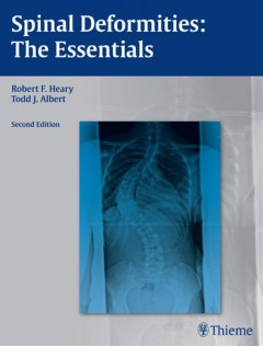 Spinal Deformities A Comprehensive Text