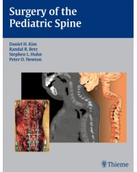 Surgery of the Pediatric Spine