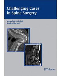 Challenging Cases in Spine Surgery