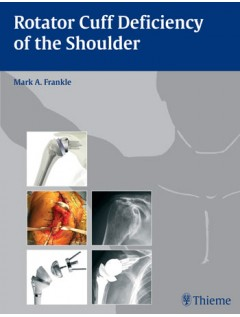Rotator Cuff Deficiency of the Shoulder