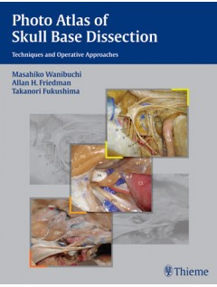 Photo Atlas of Skull Base Dissection