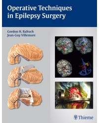 Operative Techniques in Epilepsy Surgery
