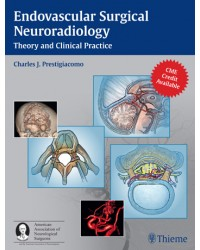 Endovascular Surgical Neuroradiology