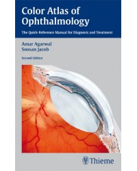 Color Atlas of Ophthalmology