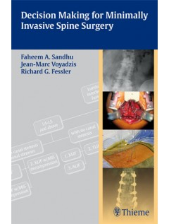 Decision Making for Minimally Invasive Spine Surgery