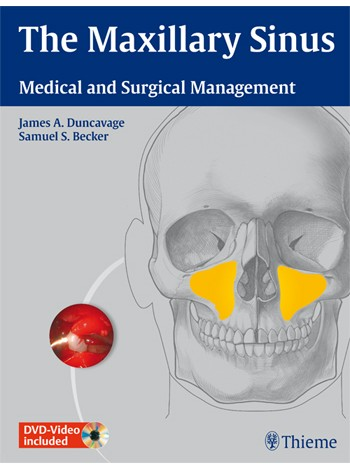 The Maxillary Sinus