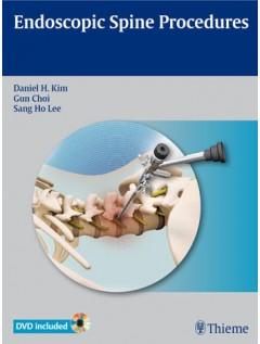 Endoscopic Spine Procedures