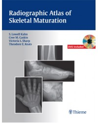 Radiographic Atlas of Skeletal Maturation
