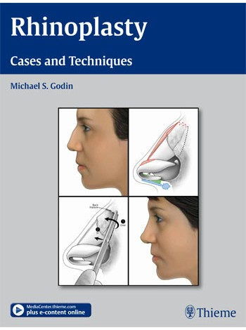 Rhinoplasty - Cases and Techniques