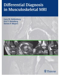 Differential Diagnosis in Musculoskeletal MRI