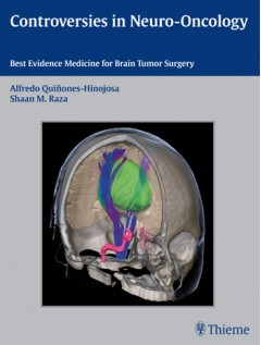Controversies in Neuro-Oncology