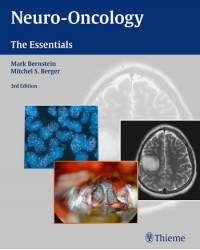 Neuro-Oncology: The Essentials