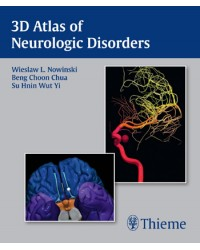 3D Atlas of Neurologic Disorders