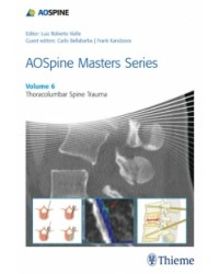AOSpine Masters Series, Volume 6: Thoracolumbar Spine Trauma