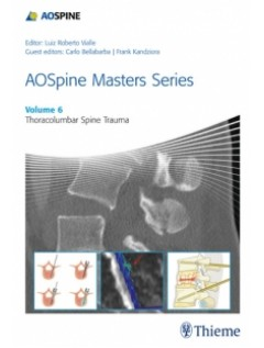 AOSpine Masters Series, Volume 6: Thoracolumbar Spine Trauma