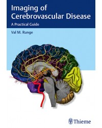 Imaging of Cerebrovascular Disease