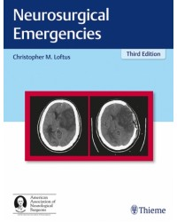 Neurosurgical Emergencies