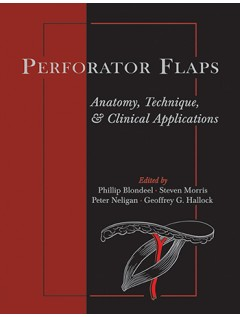 Perforator Flaps: Anatomy, Technique, & Clinical Applications, Second Edition