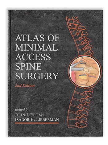 Atlas of Minimal Access Spine Surgery, Second Edition