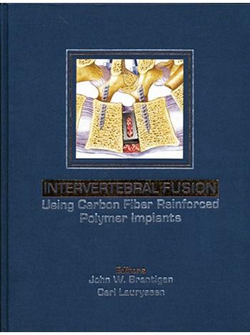Intervertebral Fusion Using Carbon Fiber Reinforced Polymer Implants