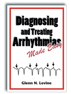 Diagnosing and Treating Arrhythmias Made Easy