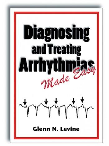 Diagnosing and Treating Arrhythmias Made Easy