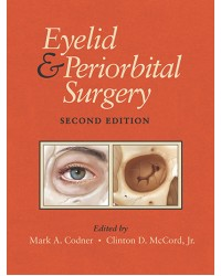 Eyelid and Periorbital Surgery