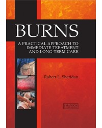 Burns: A Practical Approach to Immediate Treatment and Long Term Care
