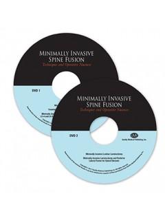 Minimally Invasive Spine Fusion: Techniques and Operative Nuances: 2-DVD Box