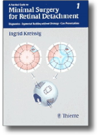 A Practical Guide to Minimal Surgery for Retinal Detachment