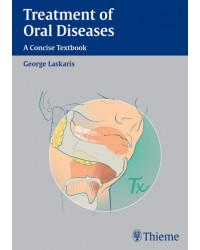 Treatment of Oral Diseases