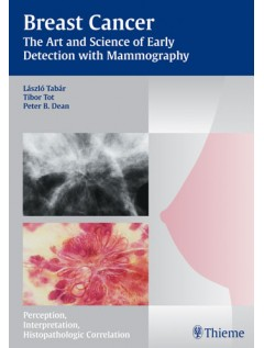 Breast Cancer - The Art and Science of Early Detection with Mammography