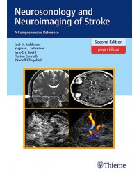 Neurosonology and Neuroimaging of Stroke