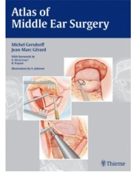 Atlas of Middle Ear Surgery