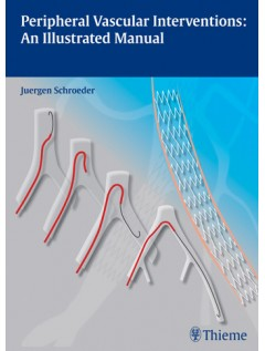 Peripheral Vascular Interventions: An Illustrated Manual