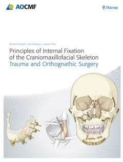 Principles of Internal Fixation of the Craniomaxillofacial Skeleton