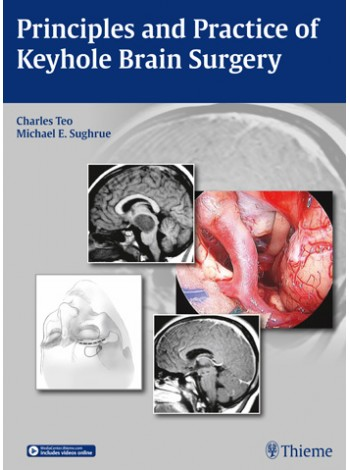 Principles and Practice of Keyhole Brain Surgery