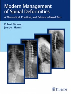 Modern Management of Spinal Deformities