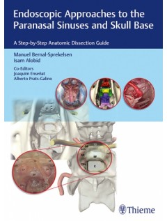 Endoscopic Approaches to the Paranasal Sinuses and Skull Base