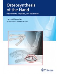 Osteosynthesis of the Hand