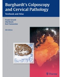 Burghardt's Colposcopy and Cervical Pathology