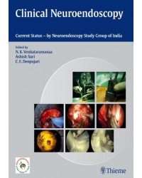Clinical Neuroendoscopy: Current Status By Neuroendoscopy Group of India