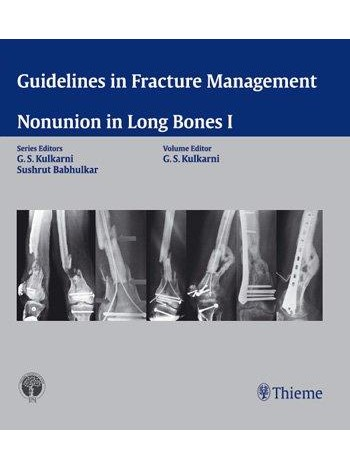 Guidelines in Fracture Management - Nonunion in Long Bones I