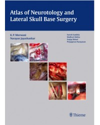 Atlas of Neurotology and Lateral Skull Base Surgery
