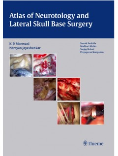 Atlas of Neurotology and Lateral Skull Base Surgery