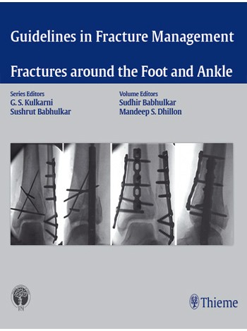 Guidelines in Fracture Management