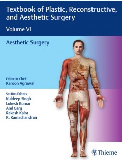 Textbook of Plastic, Reconstructive, and Aesthetic Surgery 6