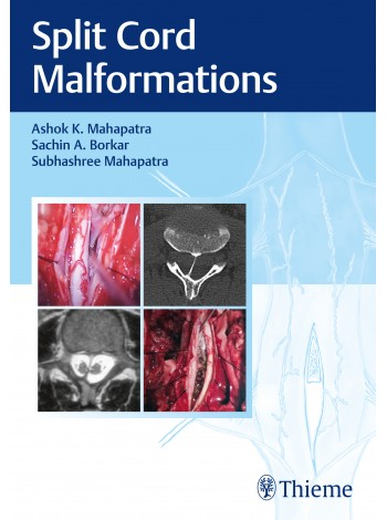 Split Cord Malformations