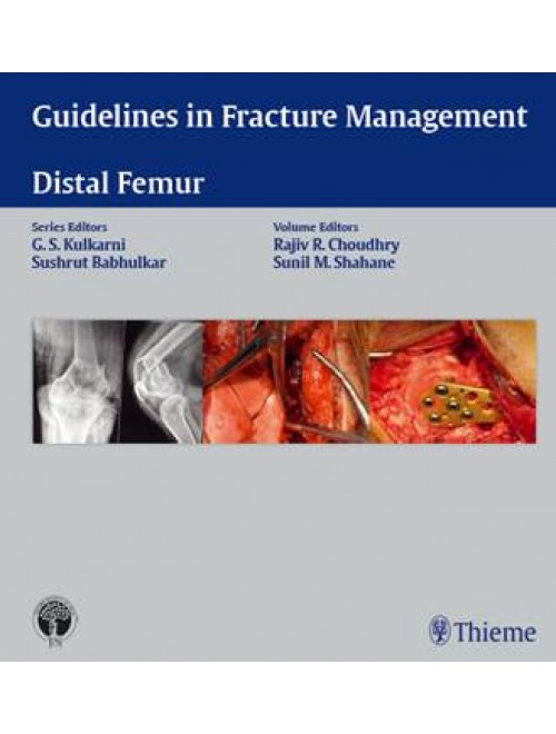 Guidelines in Fracture Management- Distal Femur